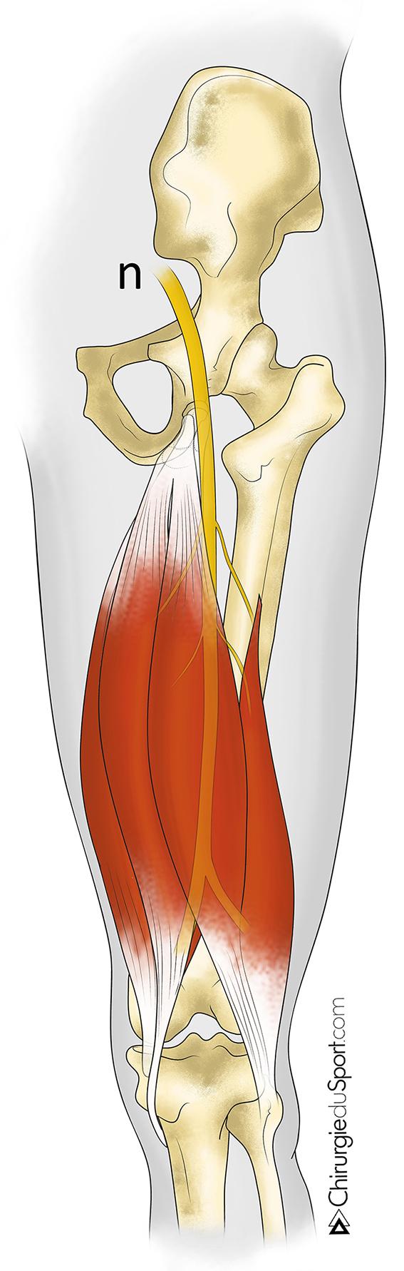 tratamientos - HIP - tendón - la reparación quirúrgica de las ...