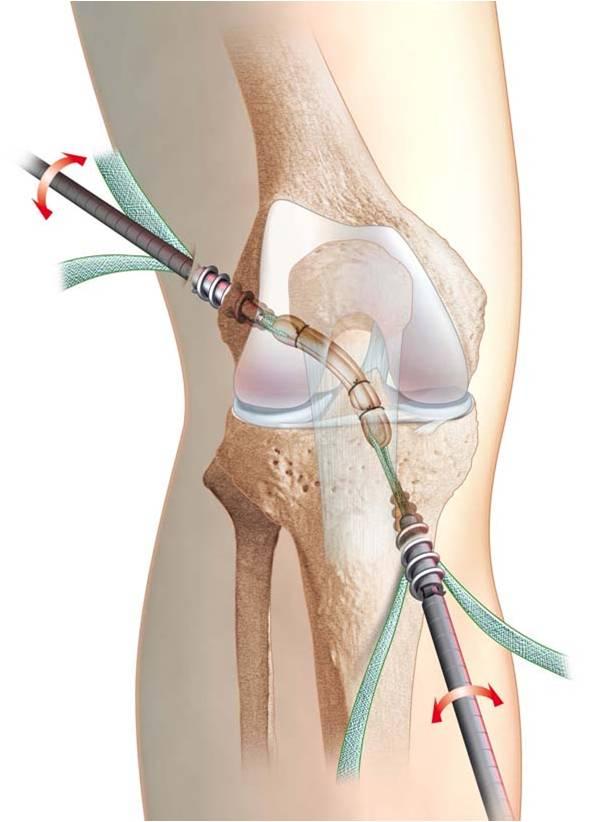 tratamientos - RODILLA - ligamento - las técnicas actuales ...