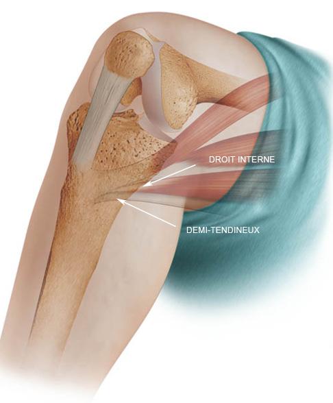 tratamientos - RODILLA - ligamento - Ligamentoplastia del ligamento ...