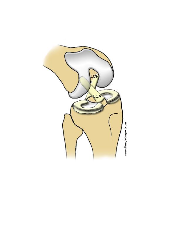 anatomía - RODILLA - ligamento - ligamento cruzado anterior (LCA y ...