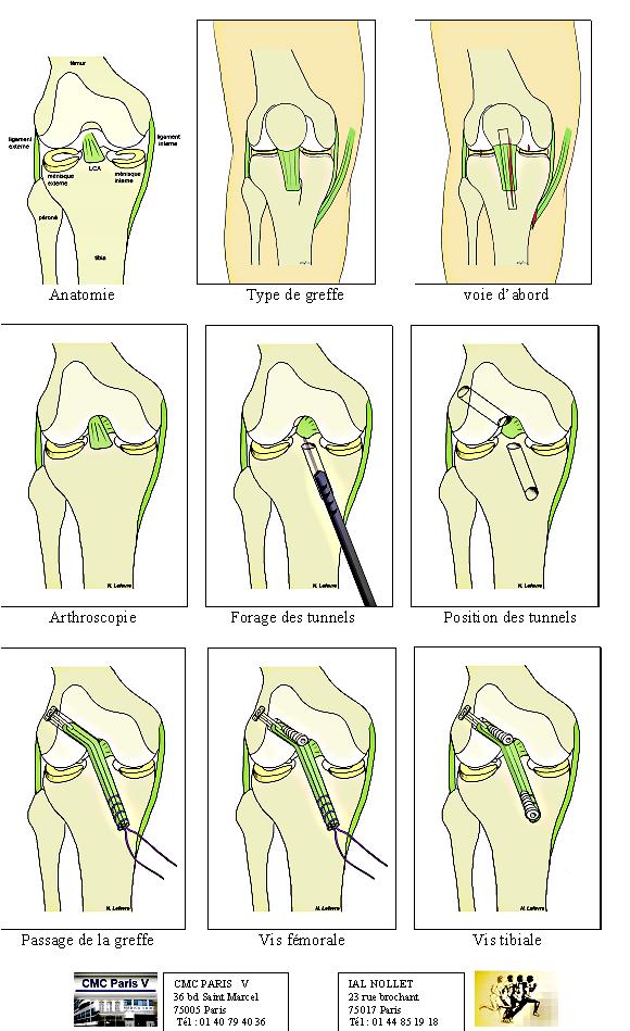 tratamientos - RODILLA - ligamento - Cirugía de la rotura del ...