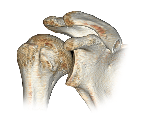 anatomía - HOMBRO - articulación glenohumeral - hueso del hombro ...