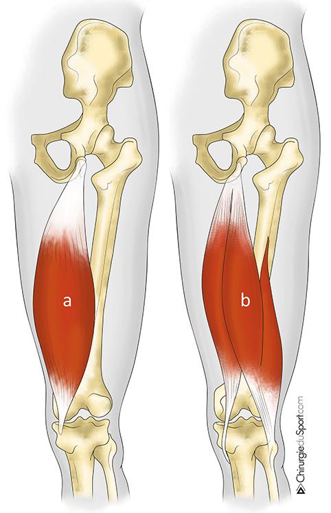 tratamientos - HIP - tendón - Alta rotura aguda de los tendones ...