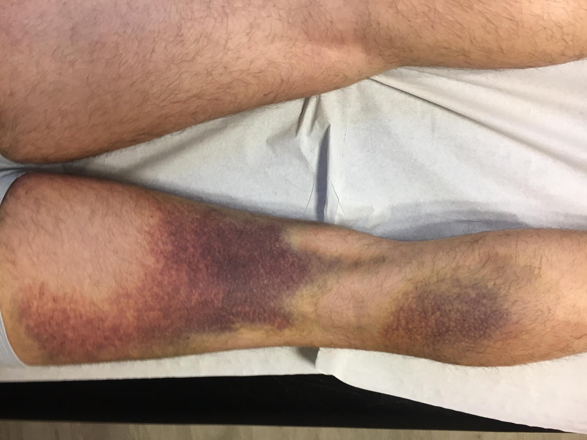 patología - HIP - tendón - Hematoma muslo isquiotibiales ruptura