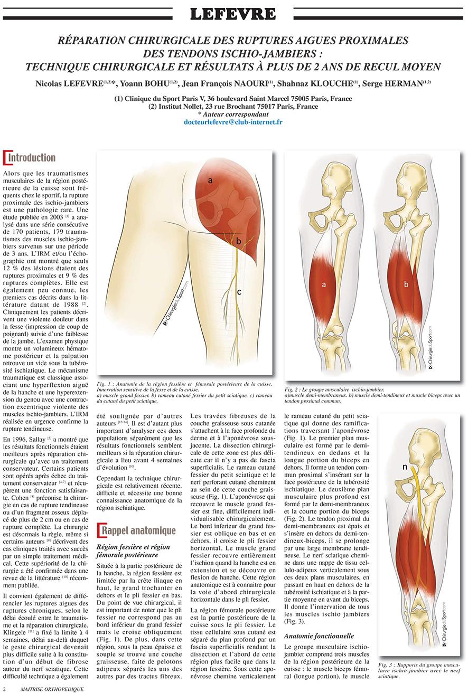 tratamientos - HIP - tendón - Tibial ruptura del tendón de la corva