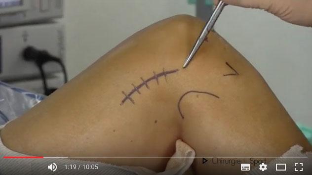 tratamientos - RODILLA - ligamento - reconstrucción de ligamentos ...